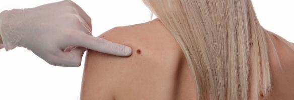 Nuova terapia per il melanoma metastatico: arrivano i virus geneticamente modificati!